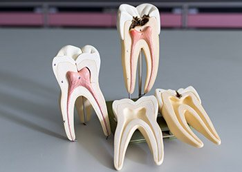 Models of the inside of healthy and unhealthy teeth