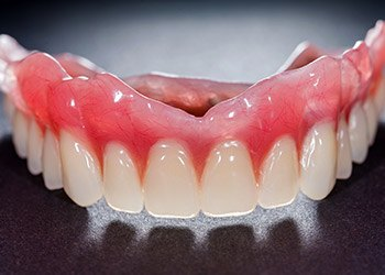 Full denture prior to placement